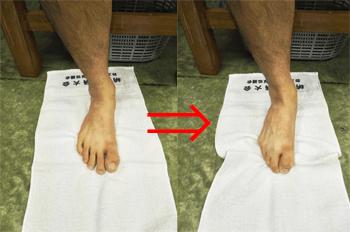 足底腱膜炎 テーピング
