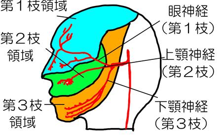 三叉神経痛 領域