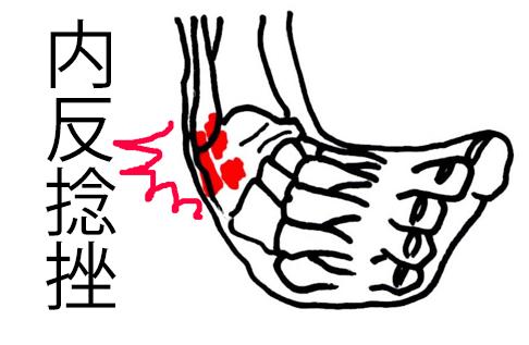 足関節 内反捻挫