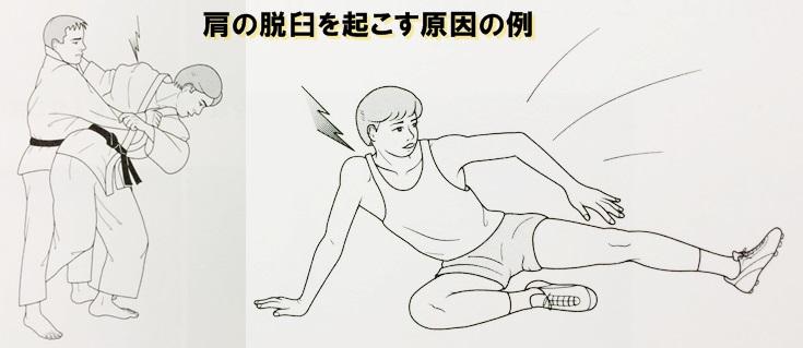 肩関節脱臼の原因