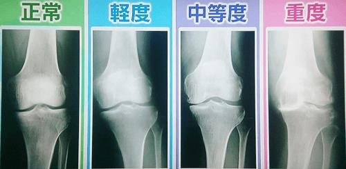 変形性膝関節症 写真