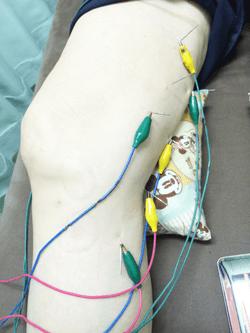 変形性膝関節症 鍼灸