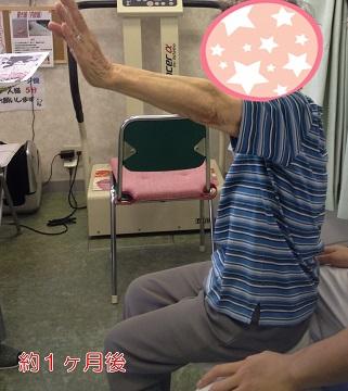 高齢者腱板断裂 1ヶ月後