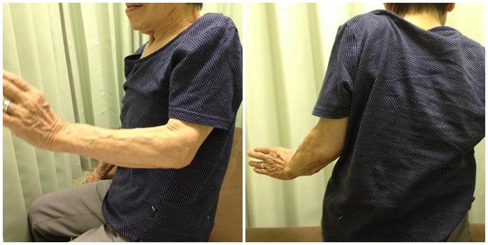 高齢者の腱板断裂