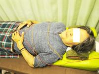三叉神経痛 78歳女性