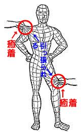 筋膜癒着イメージ